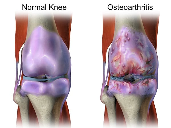 osteoarthritis diagram. A condition that can be ameliorated with turmeric supplements.